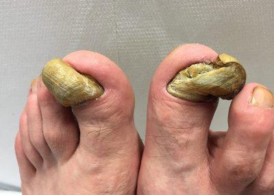 Bexley Foot Clinic - Ingrowing toe nails1