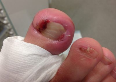 Bexley Foot Clinic - Ingrowing toe nails gallery2