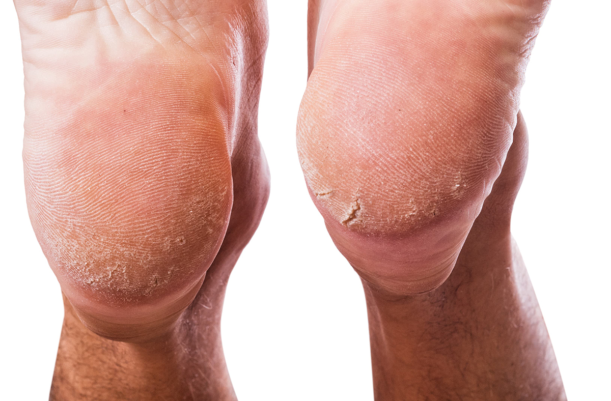 Bexley Foot Clinic Routine-foot-health-gallery5