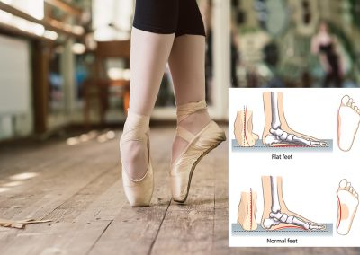 Bexley Foot Clinic - ballet foot condition example