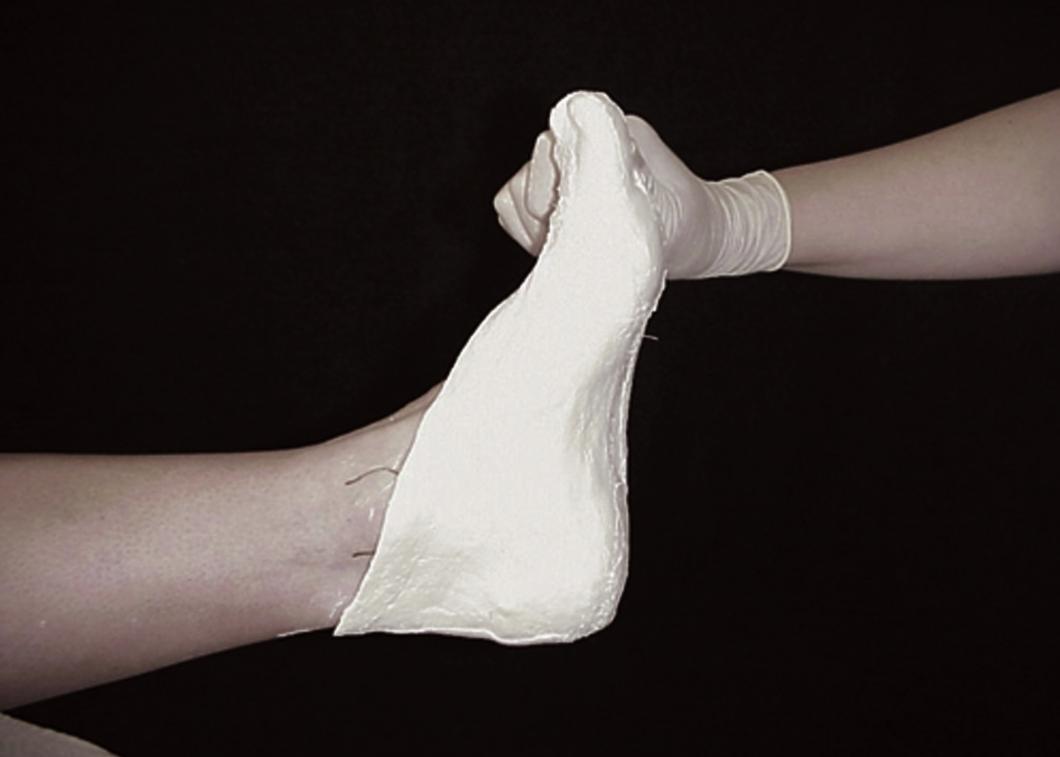 Bexley Foot Clinic - biomechanics 5