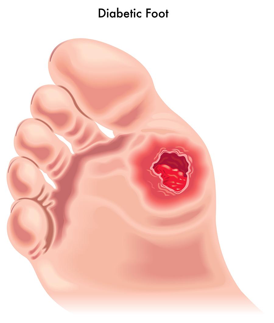 Bexley Foot Clinic diabetic-foot-drawing