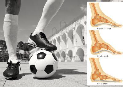 Bexley Foot Clinic -football -sports injury example