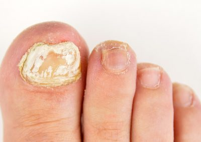 Bexley Foot Clinic - fungal-nail-condition1