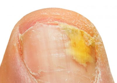 Bexley Foot Clinic - fungal-nail-condition2
